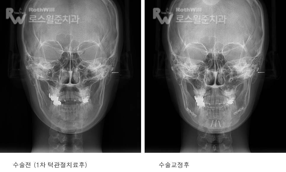 수술교정12.jpg