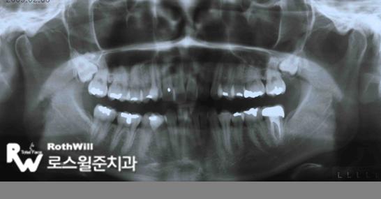 덧니교정전 파노라마 X-Ray.png