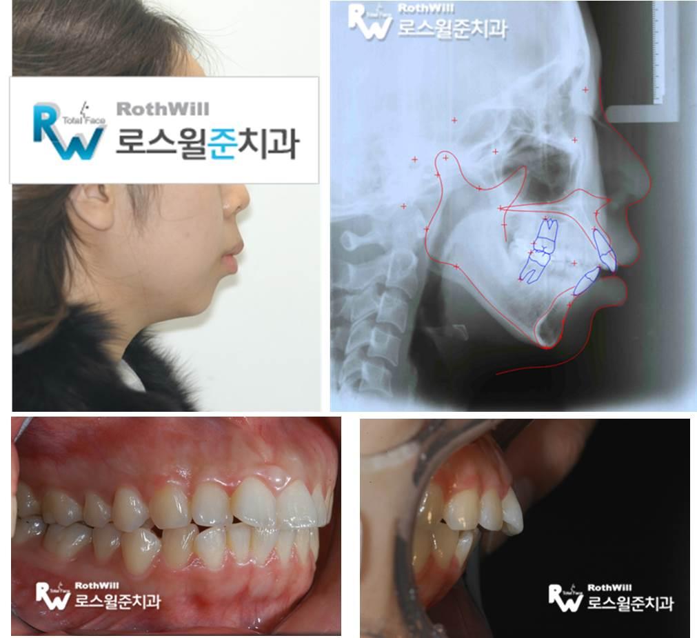 턱관절치료3.jpg