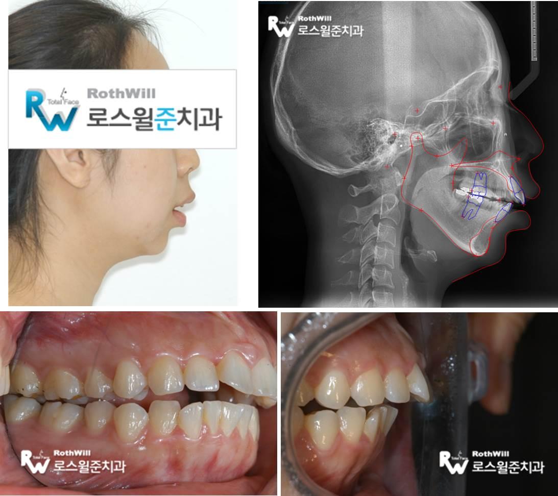 턱관절치료5.jpg